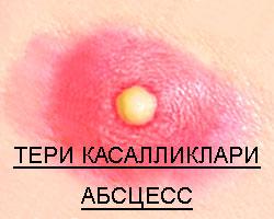 ТЕРИ КАСАЛЛИКЛАРИ АБСЦЕСС